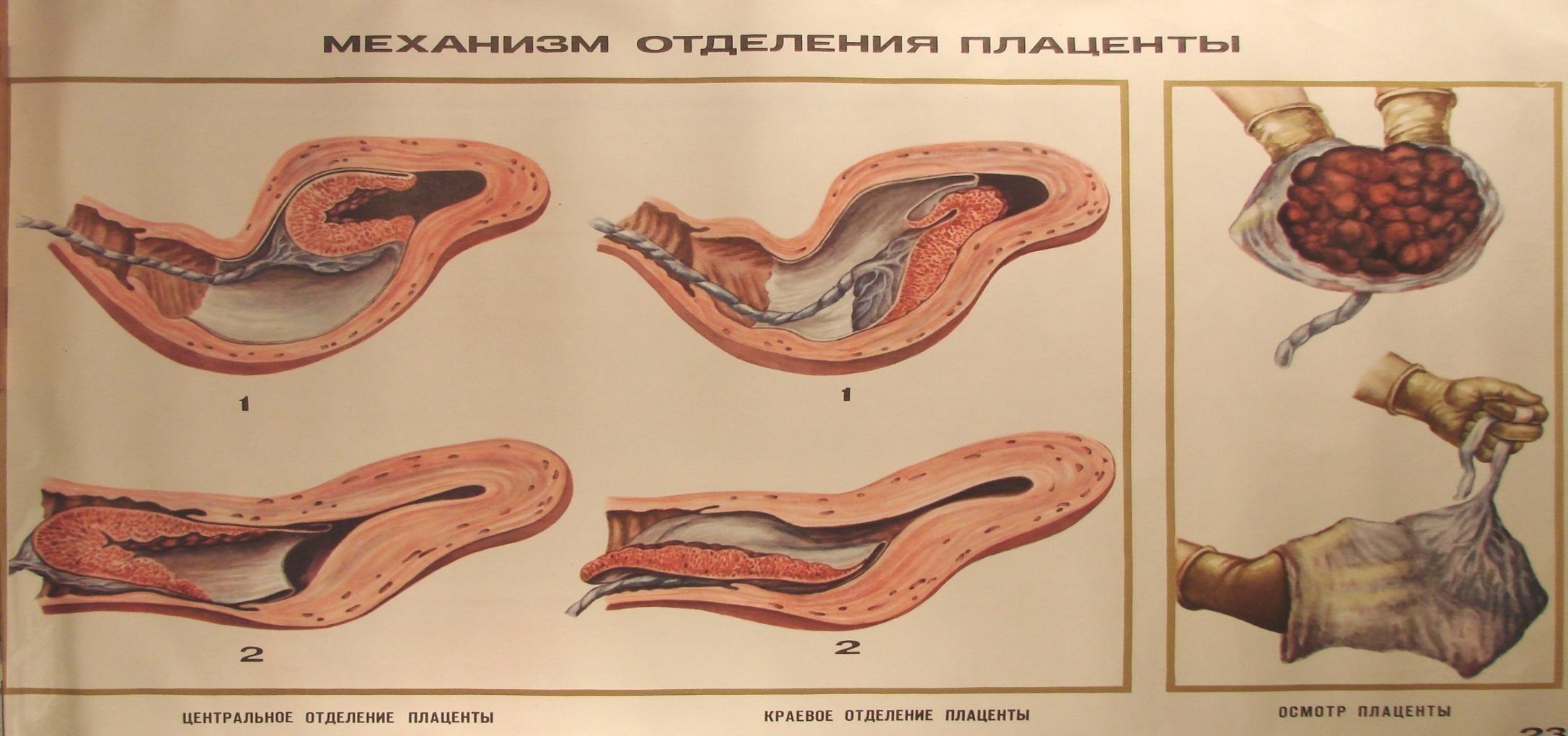 Сколько длятся лохии после родов плацента