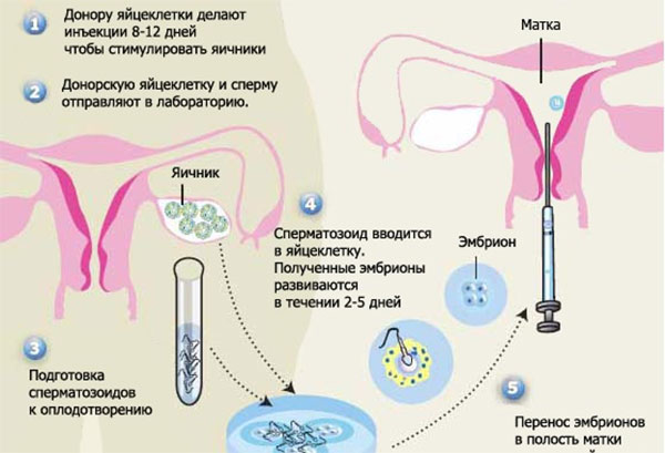 forum-vnutrimatochnaya-inseminatsiya-spermoy-donora