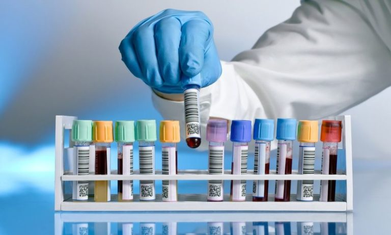 Анализ крови с пометкой Cito