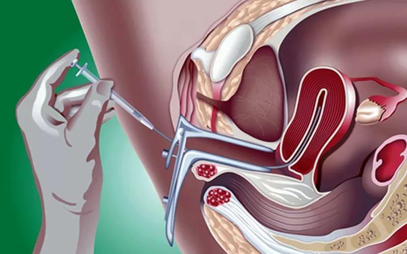 Беременность сперма