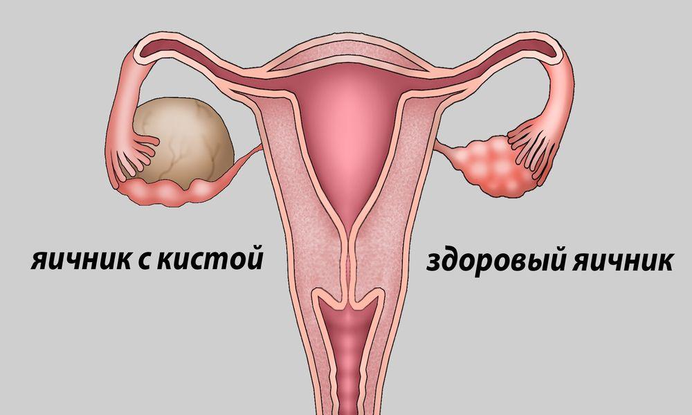 Почему болят яичники после удаления матки
