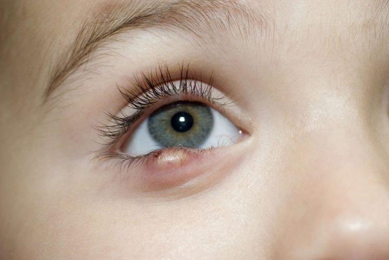 Как быстро вылечить ячмень на глазу в домашних условиях