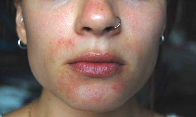 Дерматит на лице у взрослых и детей