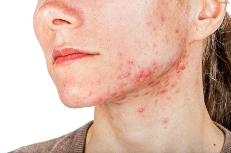 Угревая сыпь на лице: что делать